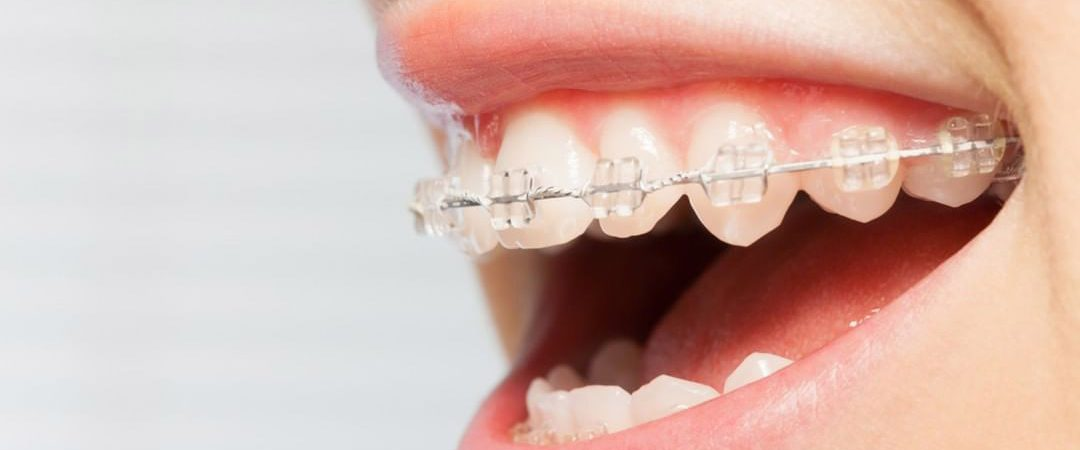 brackets-zafiro-tratamientos-clinica-dental-ignacio-espona-brackets-granada