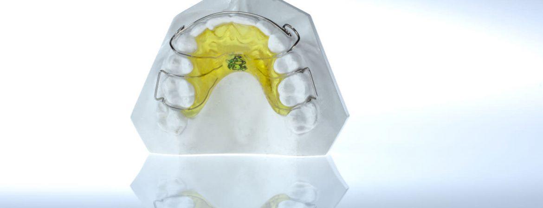 cuestiones-ortodoncia-tratamientos-clinica-dental-ignacio-espona-brackets-granada