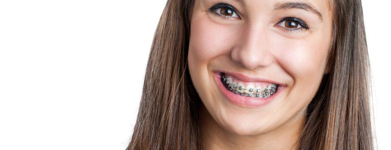 ortodoncia-adultos-tratamientos-clinica-dental-ignacio-espona-brackets-granada