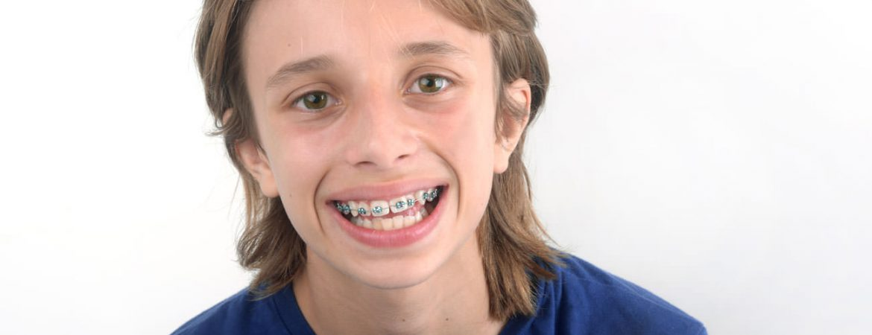 ortodoncia-infantil-tratamientos-clinica-dental-ignacio-espona-brackets-granada
